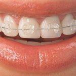 dis teli ortodonti